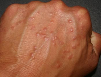 Аллергия на коже при беременности лечение