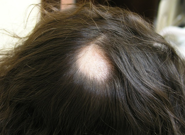 Какие витамины нужны для роста и укрепления волос на голове