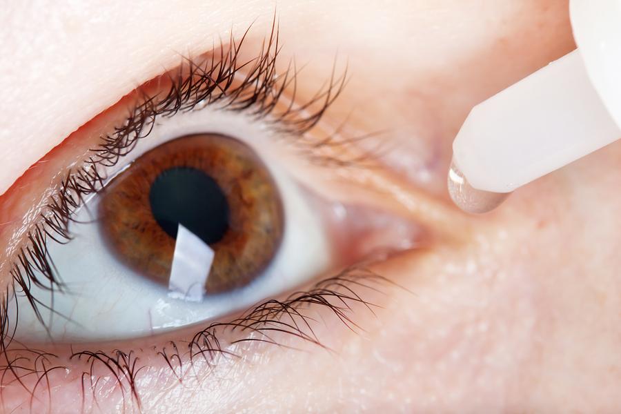 Коррекция зрения клиника федорова калуга