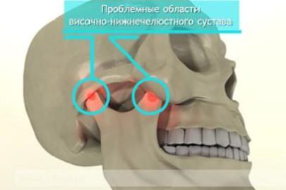 Ногти деформация болезнь