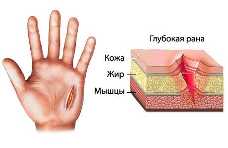 Фото порезов на руке в домашних условиях