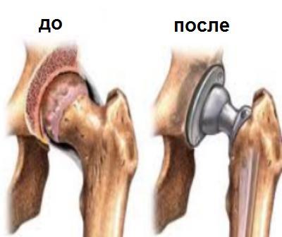 Симптомы и лечение: деформирующий остеоартроз плечевого сустава