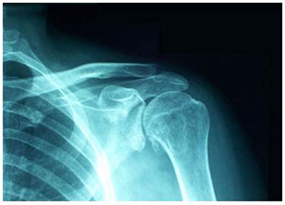 Доа плечевого сустава что это такое как лечить суставы народными средствами