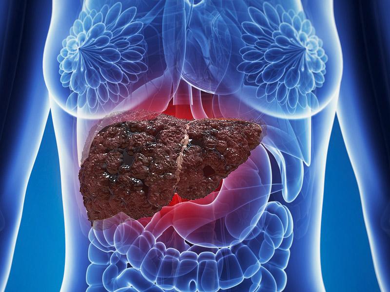 Тюмень квота на лечение гепатита с