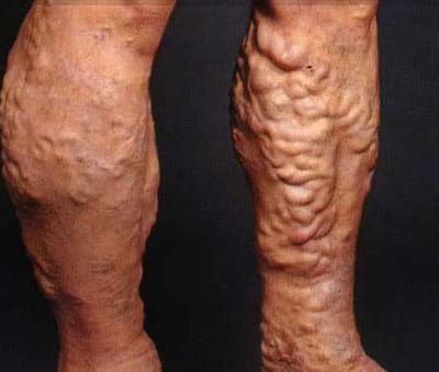 Как называется врач по венам и сосудам на ногах кто лечит варикоз