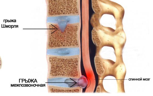 Грыжа Шморля шейного отдела позвоночника - симптомы и лечение