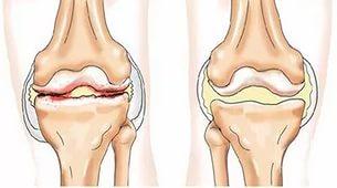 Причины болей в коленных суставах в молодом возрасте чем лечить хруст в коленном суставе
