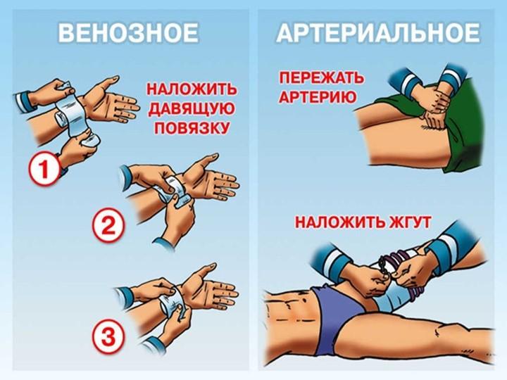 Как быстро остановить кровотечение при порезе и ранении вены в ...