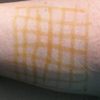 ожог от йодовой сетки на шейке как лечить