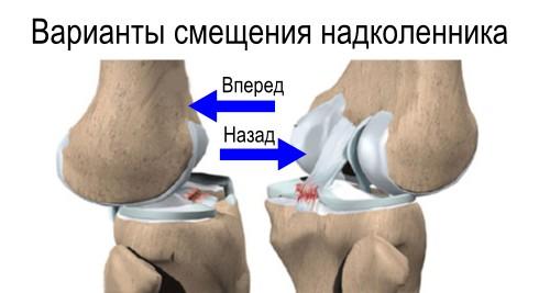 Привычный вывих коленный сустав чуствовать как ток в спине и суставах