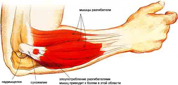 Болит рука в локтевом суставе, боли в области локтя - причины и ...