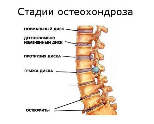 Растяжение мышц в шеи лечение