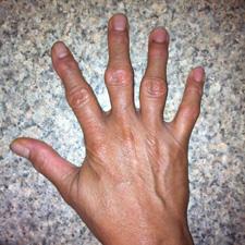 Болят фаланги пальцев рук - причины, что делать, как лечить
