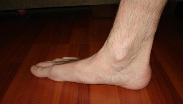 Нарушение кровообращения в ногах лечения