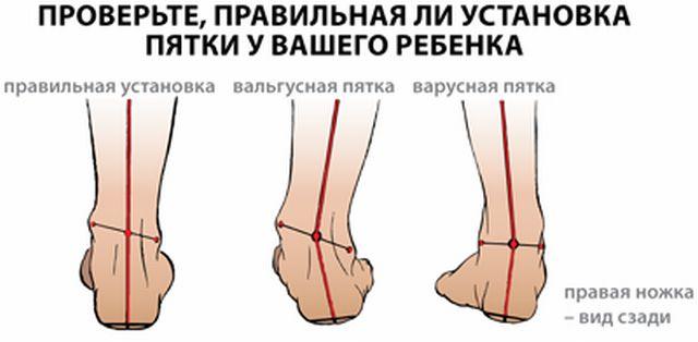 Основные причины боли в голеностопном суставе