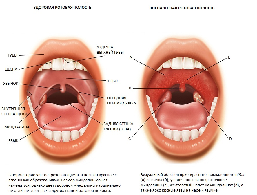 тонзиллит запах изо рта лечение
