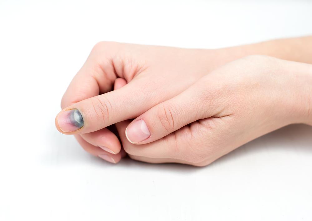 Что делать при ушибе ногтя на руке и ноге