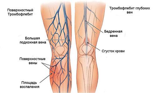Операция на варикозное расширение вен на ногах отзывы