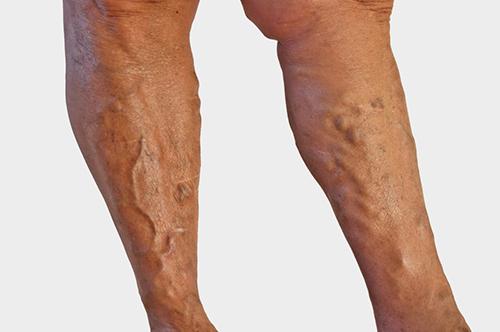 Яблочный уксус от вен на ногах отзывы