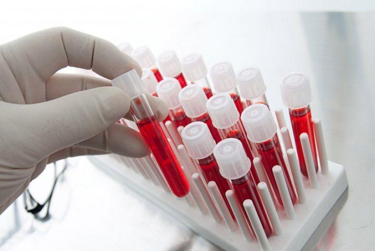 Что показывает анализ крови на вич