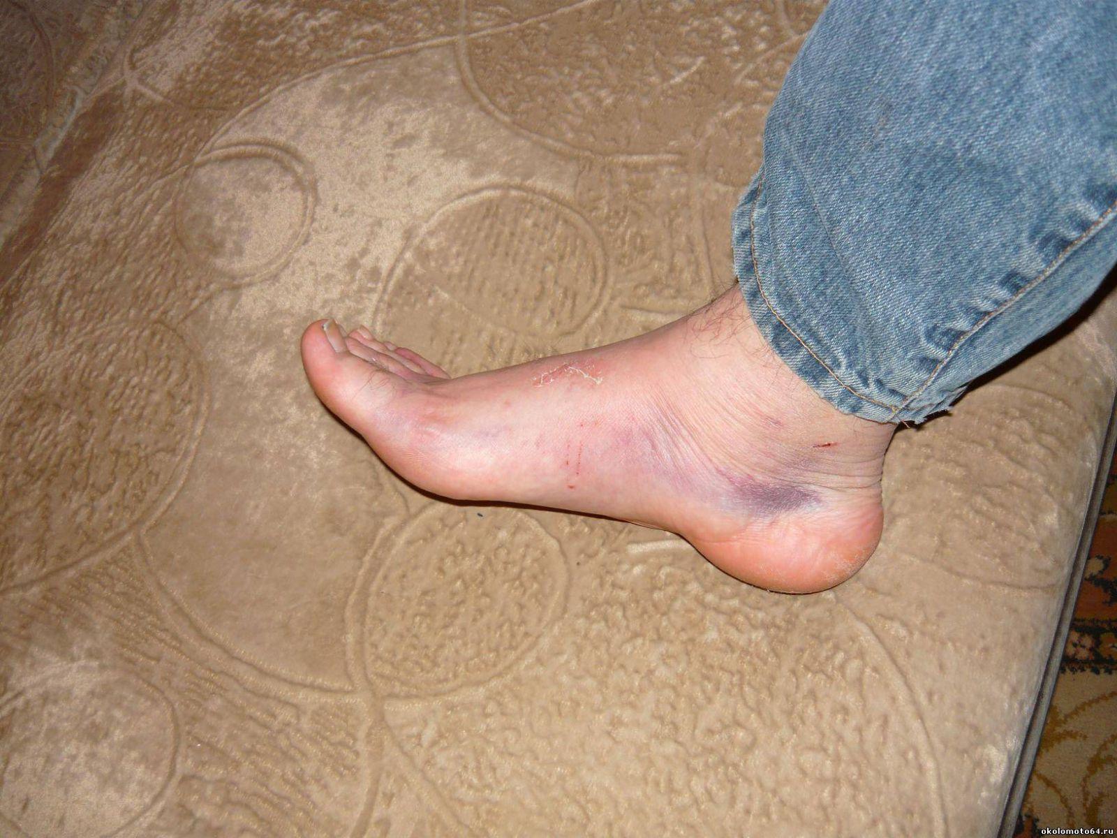 Болят ноги синие пятна