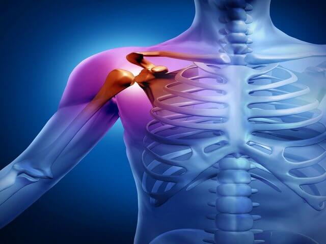 Мази гели при артрозе плечевого сустава