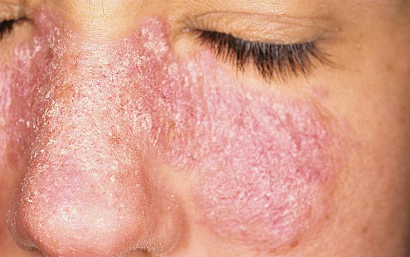 Эффективная мазь от грибка на коже лица thumbnail