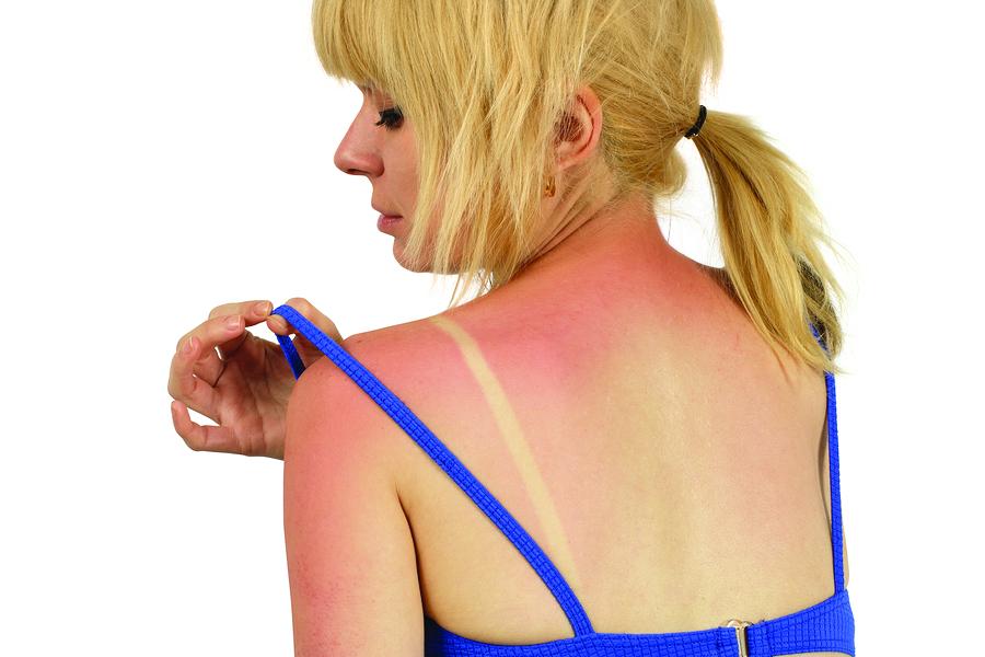 Чем можно мазать спину при солнечном ожоге thumbnail