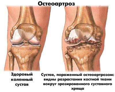 Изображение - Спортивная медицина суставы med5_3