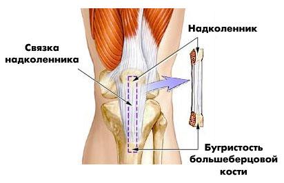 крестообразные связки, спортивная медицина