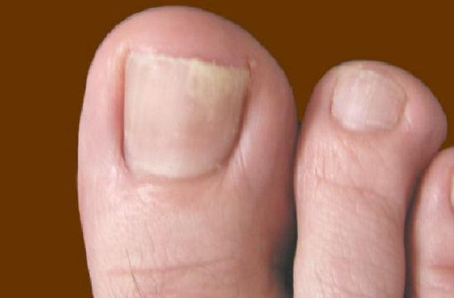 Симптомы грибка ногтей на ногах начальная