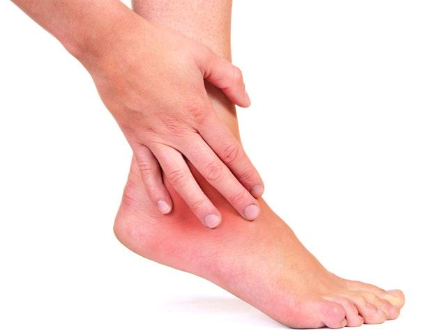 Артрит пальцев ног лечение мази -