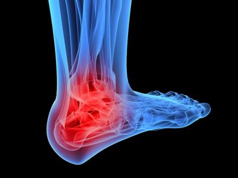 Как лечить голеностопный сустав после травмы