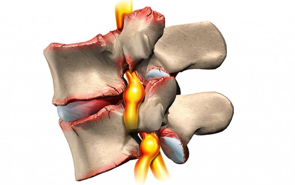 Грыжа шморля шейного отдела позвоночника симптомы и лечение