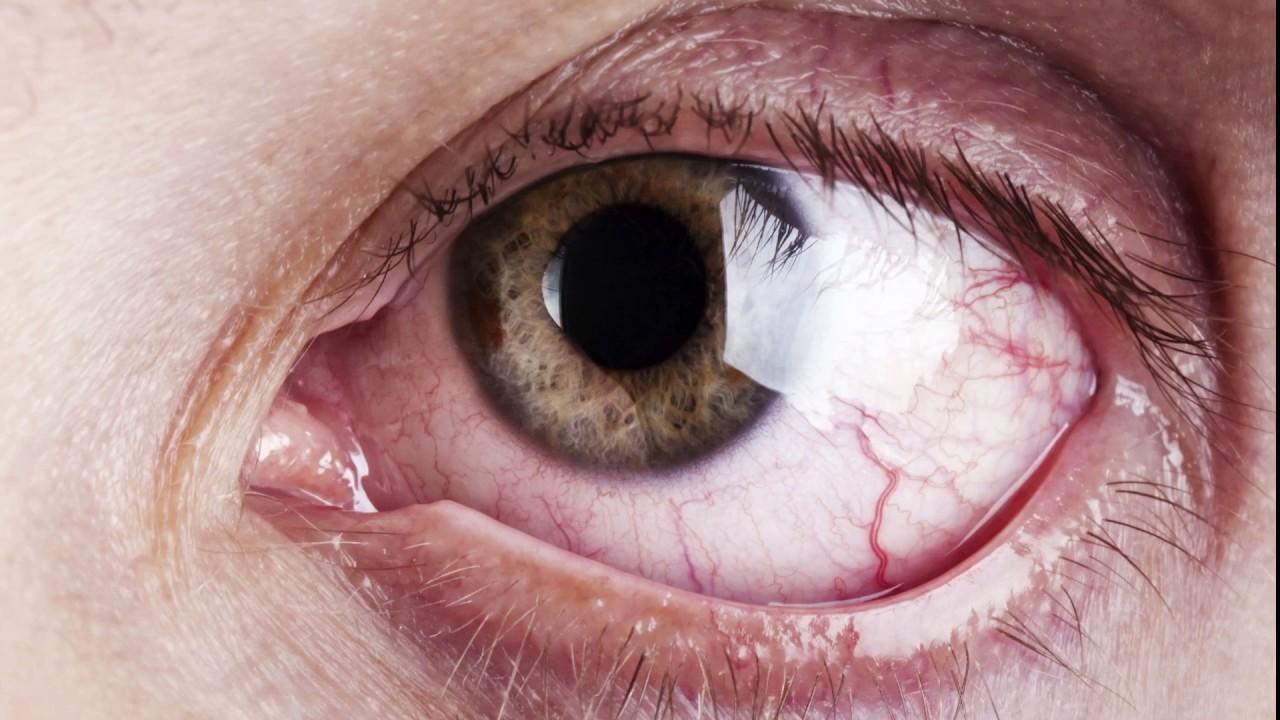 Отеки над глазами - Причины и лечение