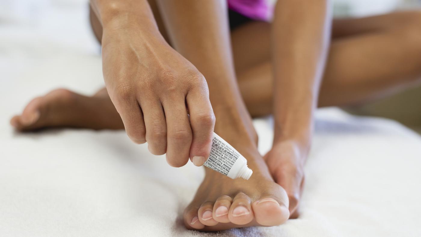 Как избавиться от грибка между пальцами ног. Методы лечения