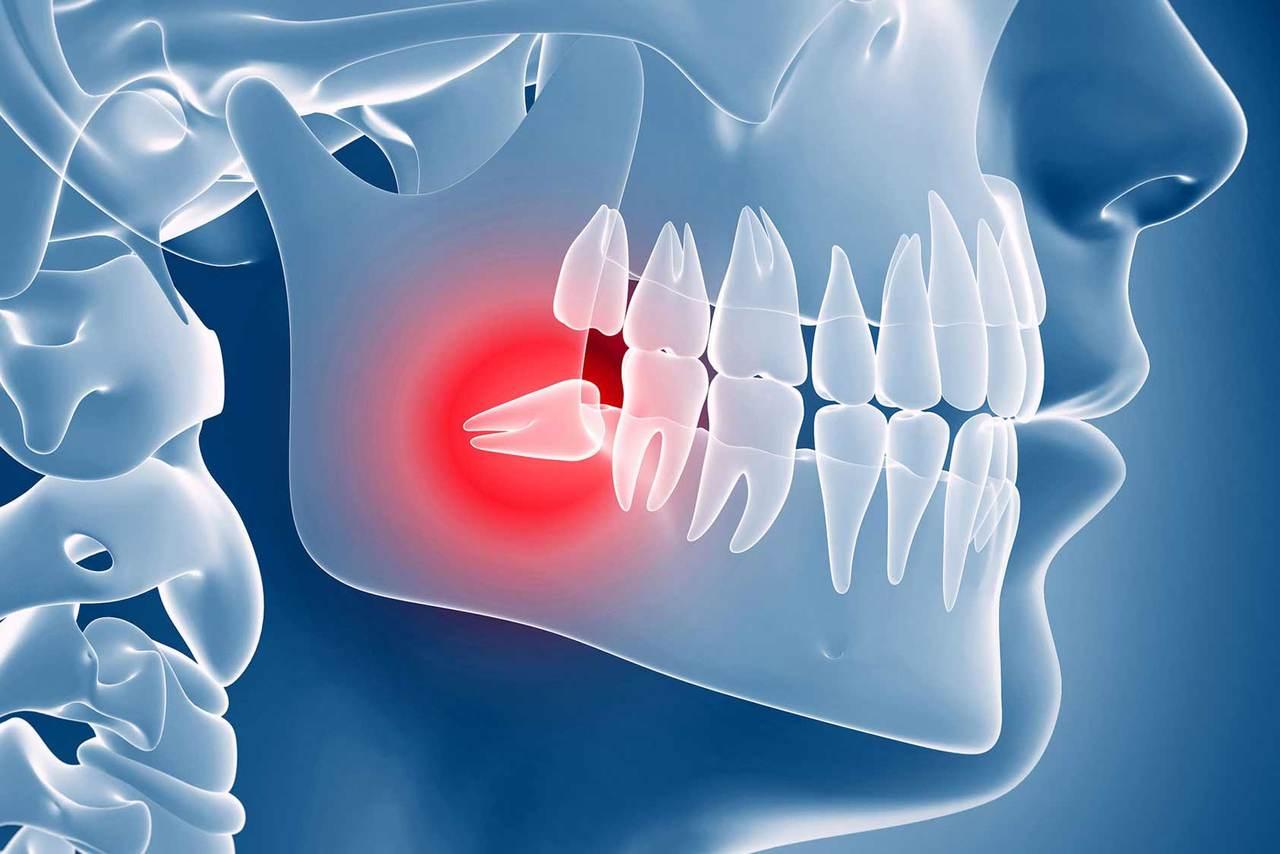 Почему растут зубы мудрости - зачем появляются зубы мудрости