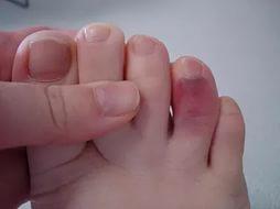 фото сломанного пальца на ноге