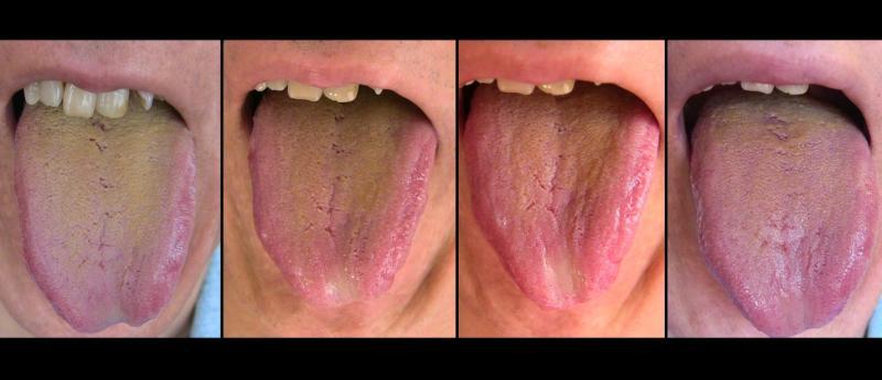 Диагностика болезней по языку