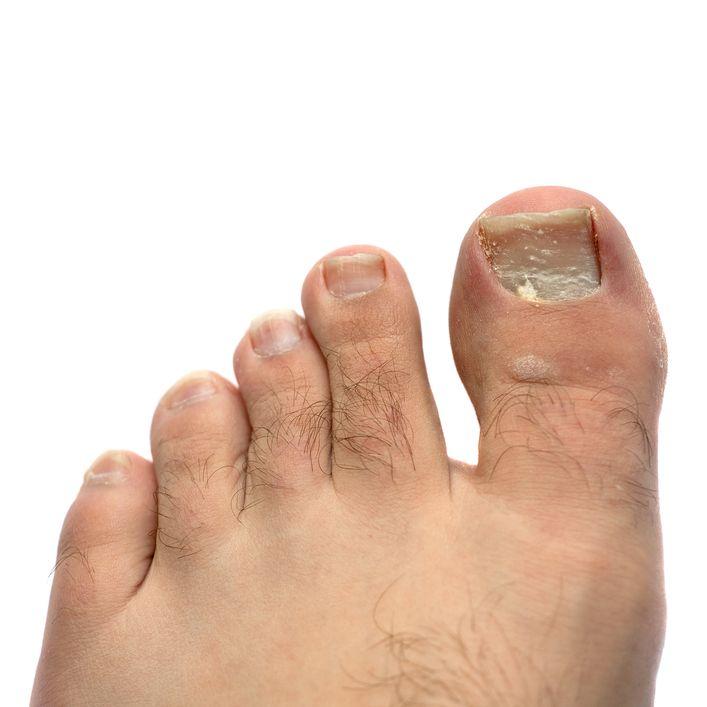 Как лечить грибок ногтей на руках в домашних условиях