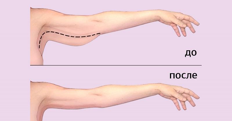 Как легко и быстро убрать жир с рук и под руками: упражнения