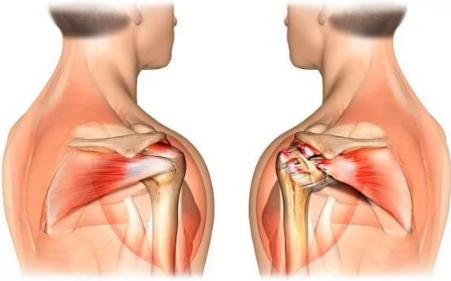 Повреждение связок плечевого сустава упражнения для реабилитации окопник мазь лечение суставов