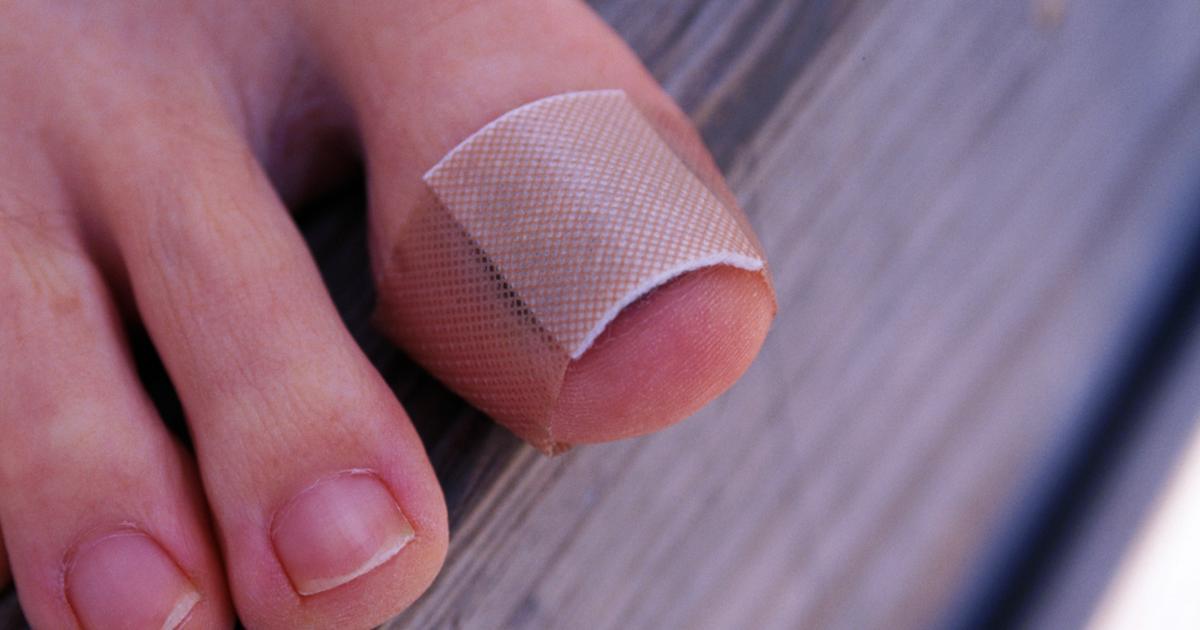 Болит ноготь на большом пальце ноги при нажатии