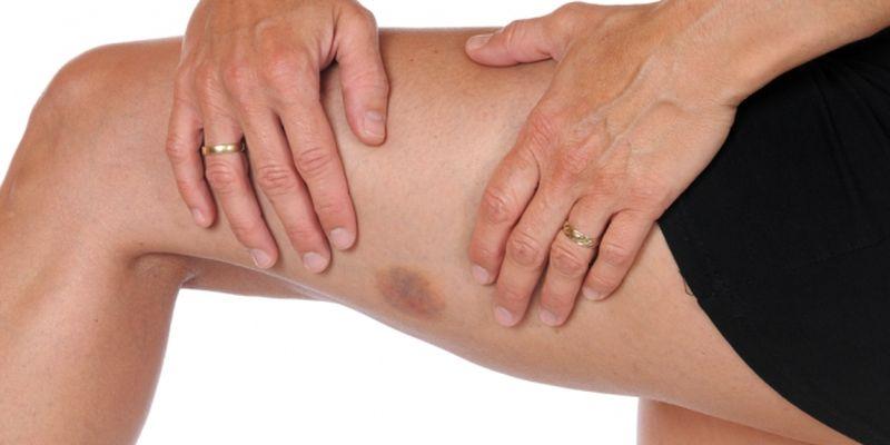 Почему появляются синяки на теле без причины у взрослых и детей