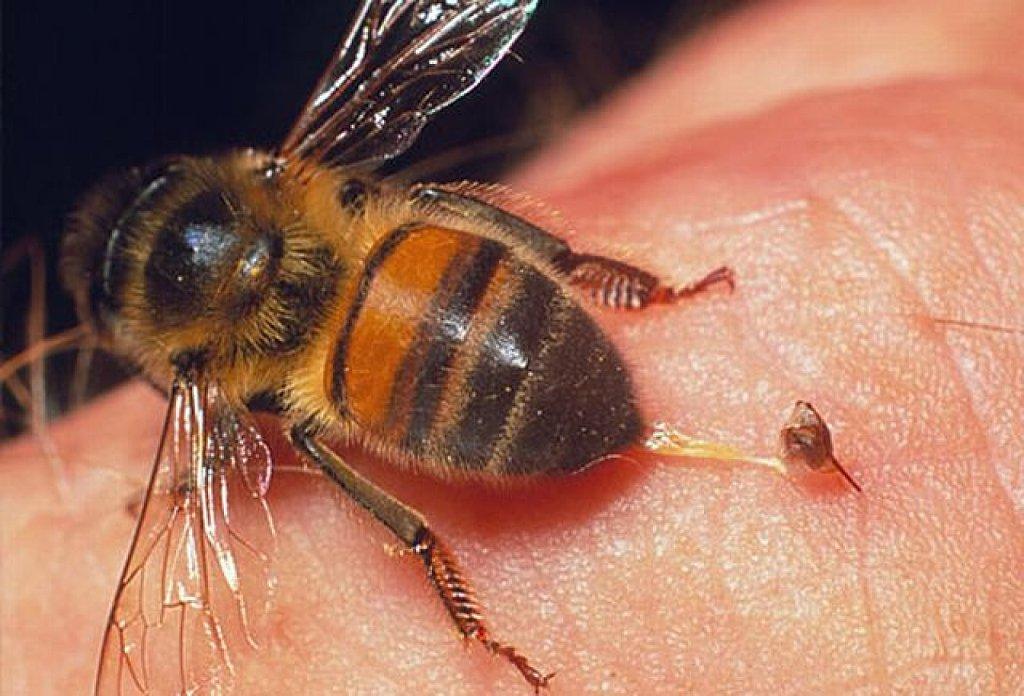 Первая помощь при укусе пчелы или осы в домашних условиях