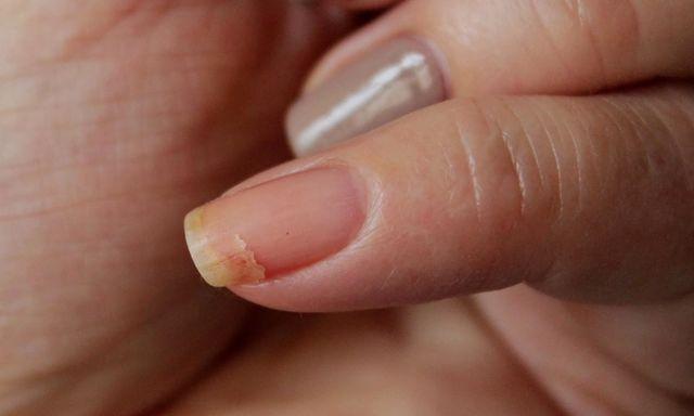 Почему ломаются ногти на руках