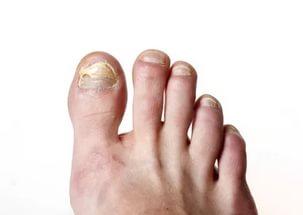 Противогрибковые лаки для ногтей – 10 лучших препаратов