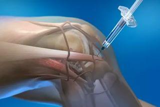 Уколы в колено при артрозе коленного сустава