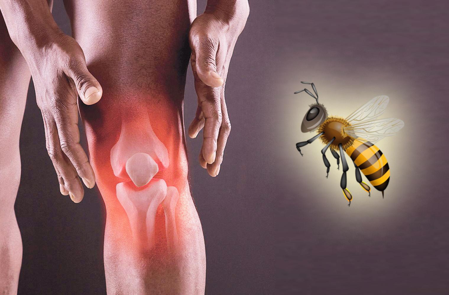 Пчелиный яд для лечения артрита коленного сустава воспаление межсуставной сумки