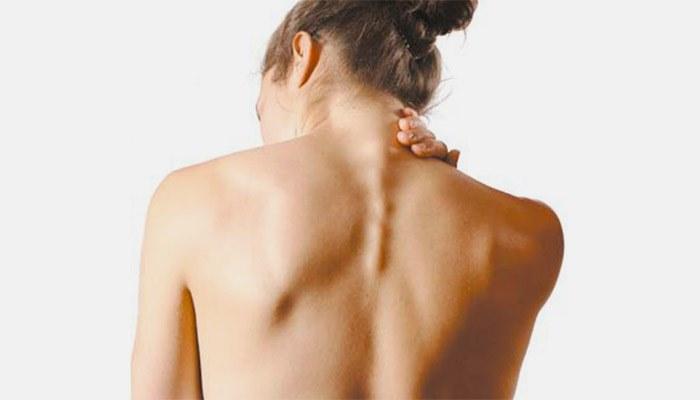 Межреберная невралгия под грудью
